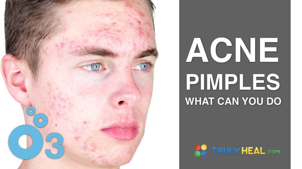 ACNE PIMPLES OZONE