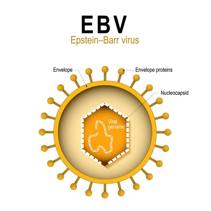 epstein barr virus thyroid