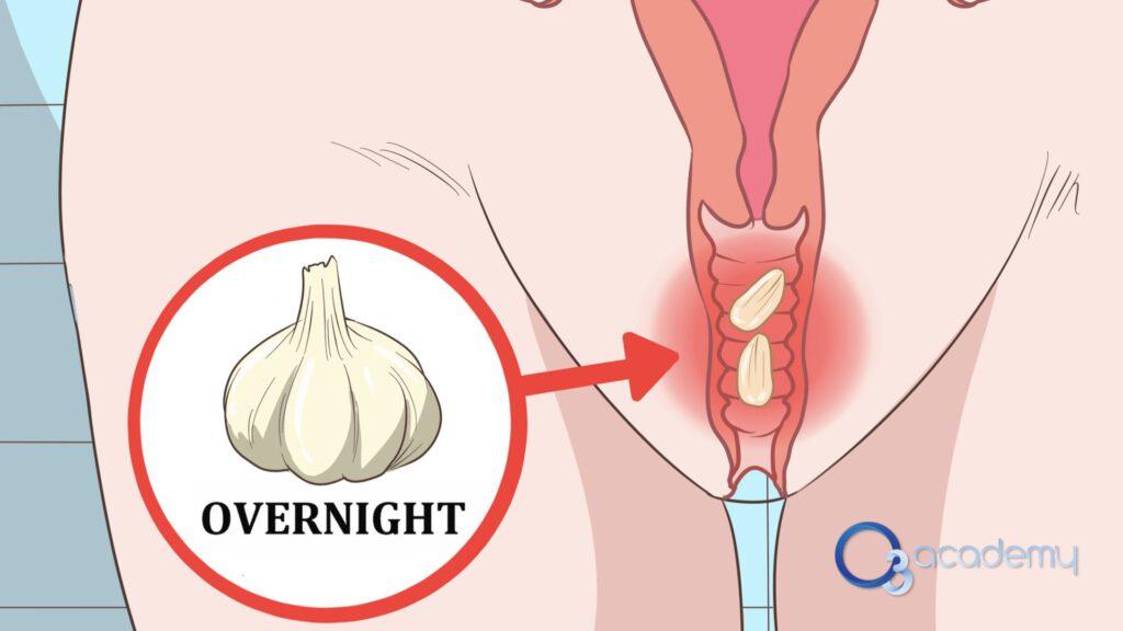 Vaginal.002