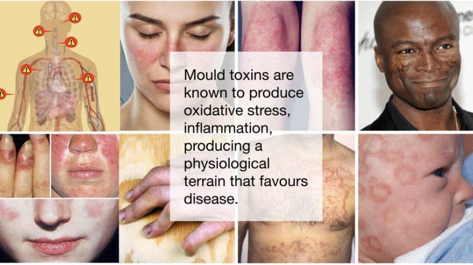 Mould disease.005